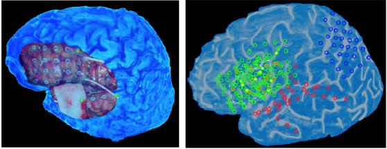 Università di Pavia e IUSS: una scoperta che apre nuovi orizzonti negli studi su cervello e linguaggio