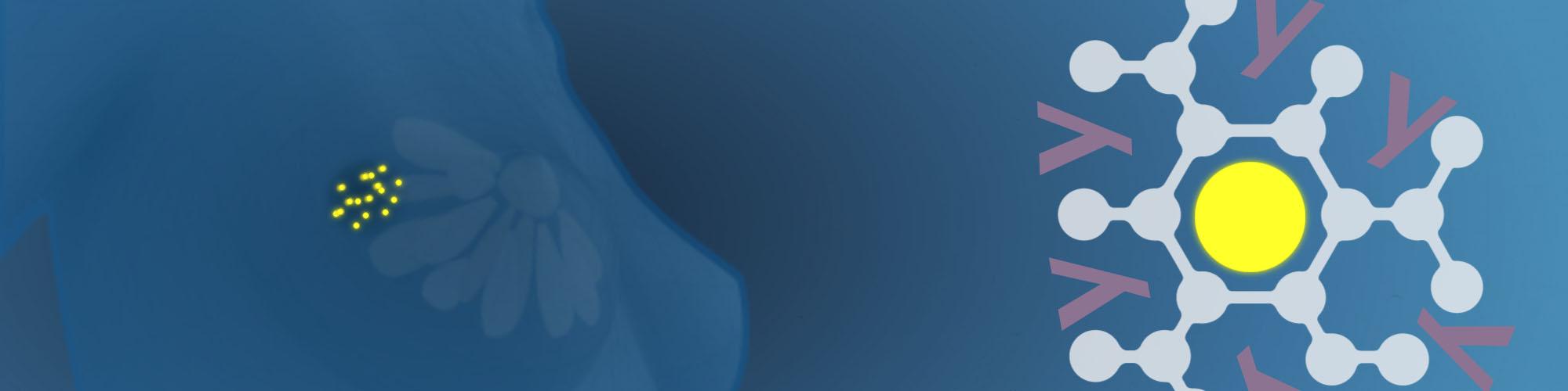 Tumore al seno: sconfiggerlo con nanosfere d'oro intelligenti
