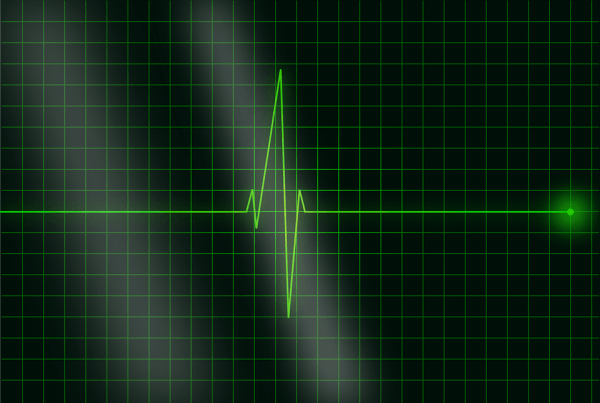 Progetto D-Heart: nuovo dispositivo per salvare una vita