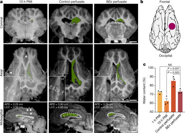 """Assegnista di ricerca UniPV contribuisce a """"BrainEx"""": la tecnica che permette di ripristinare la circolazione sanguigna e le funzioni cellulari nel cervello di maiale dopo la morte"""
