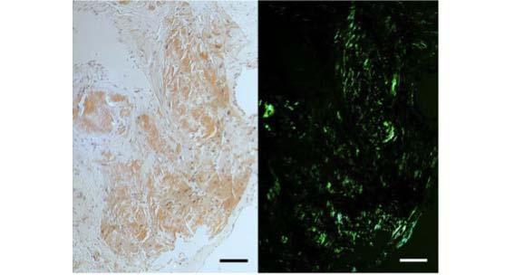 Svelata la struttura delle fibrille di amiloide cardiaca